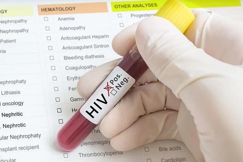 Medicin mod hiv og aids