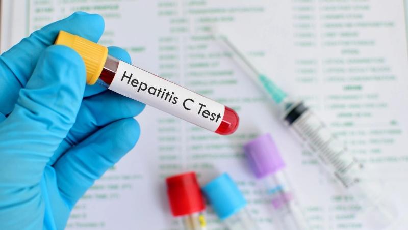 Hepatitis C og Hepatitis B